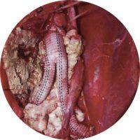 복부대동맥류-그림 1